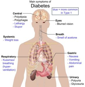 Diabetes diagram of its effects on the body