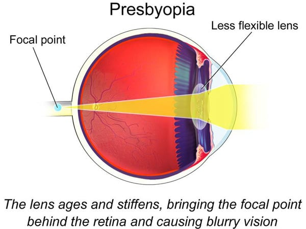 Natural Treatment For Presbyopia