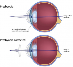 Presbyopia Treatment
